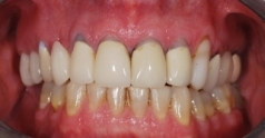 Before dental restoration