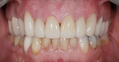 After dental restoration